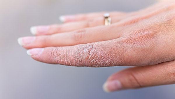 فواید سوربیتول در مراقبت از پوست